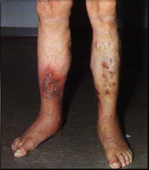 Как предотвратить варикоз на ногах в домашних условиях